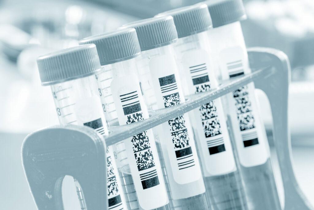 COVID-19 test tubes