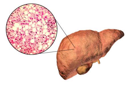 digital rendition of unhealthy liver
